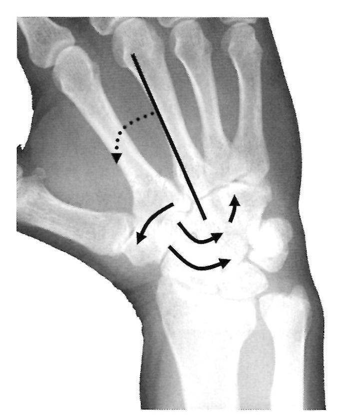 入院中に肘部管症候群 こんな時の治し方