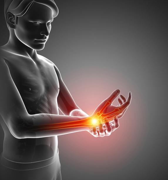 手が動かない(巧緻障害) 膝の人工関節と運動連鎖の視点からの治療考察