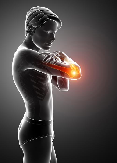 長らく続くテニス肘 運動連鎖と関節運動学的調整法