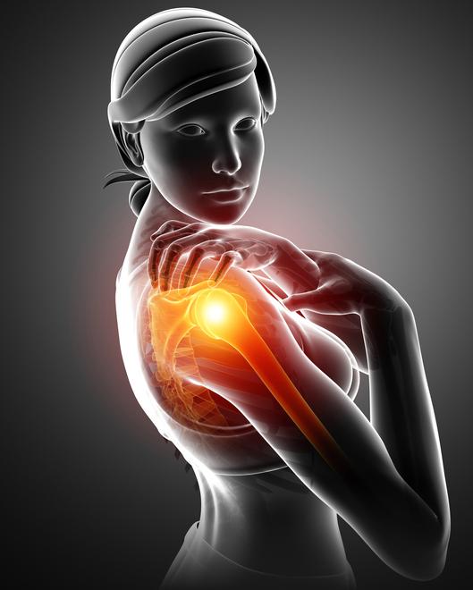 肩の痛みの多くは肘関節由来