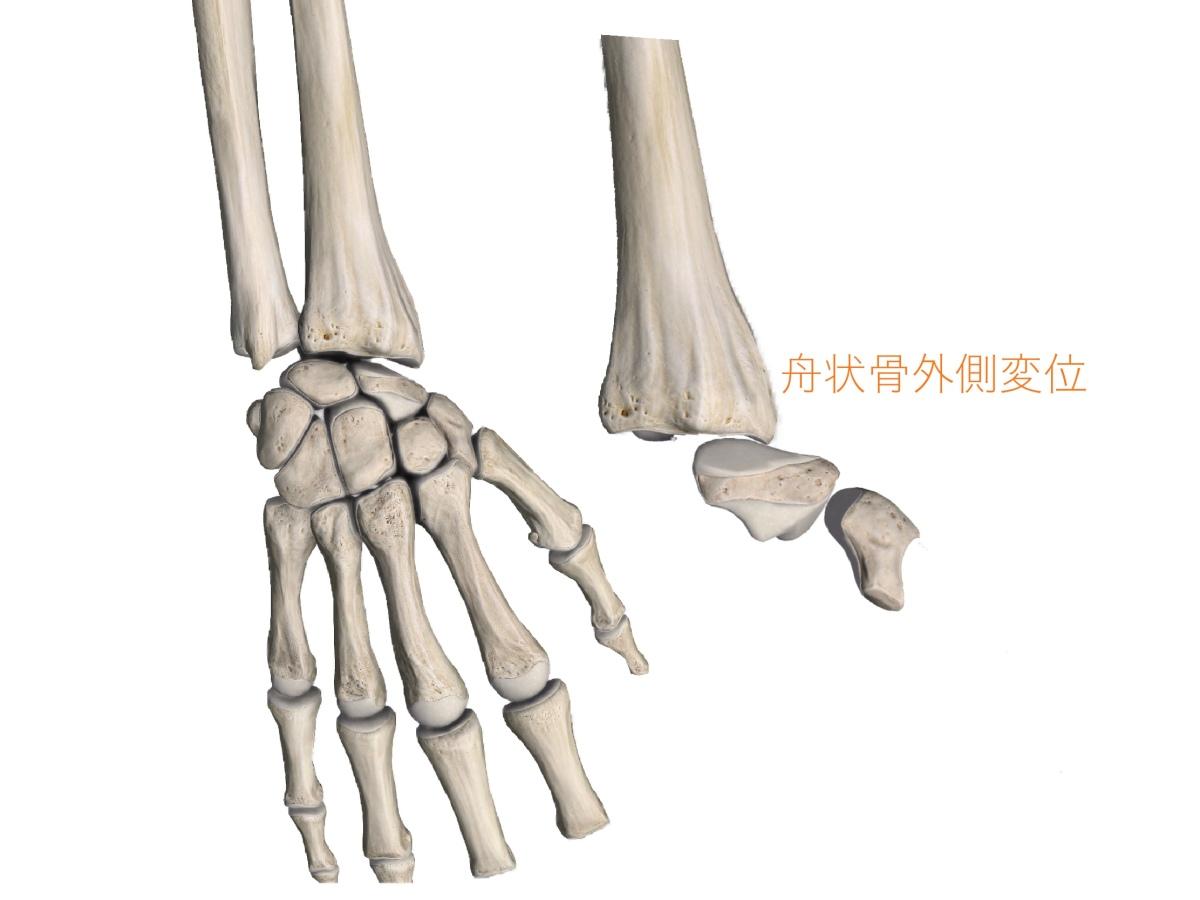 線維性筋痛症? 長く続く手や肩の痺れ 埼玉・東京