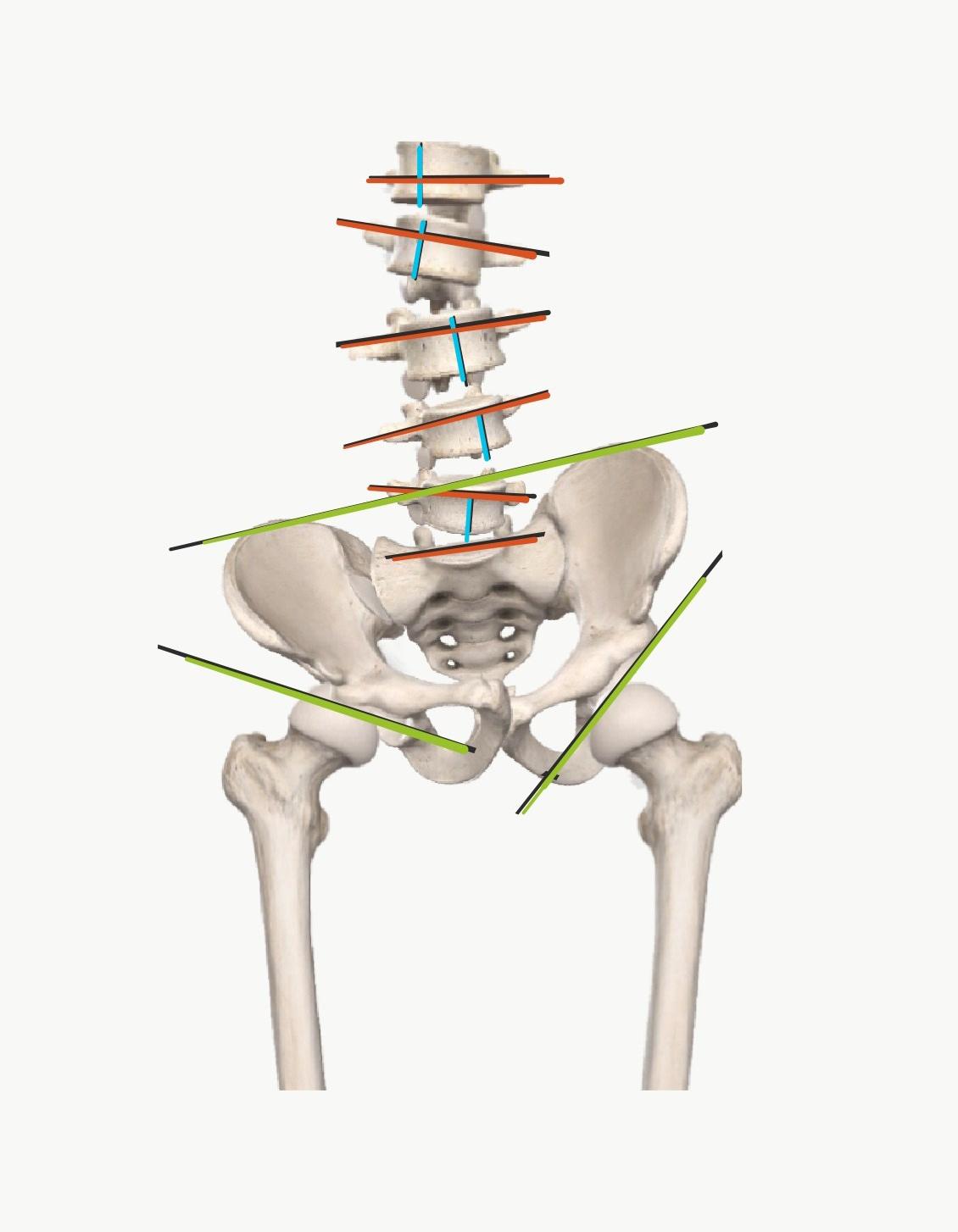 学生の側弯症、顎関節症も合併  動きの触診による評価と治療
