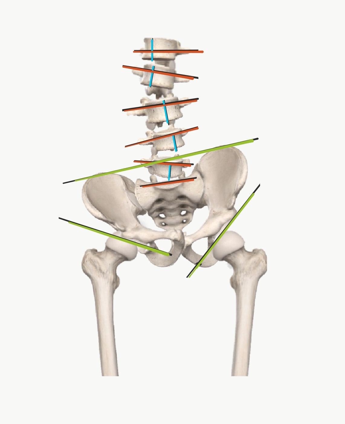 腰部脊柱管狭窄症 多様な病態モデル