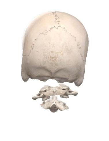 頭蓋・環椎・軸椎の不整列