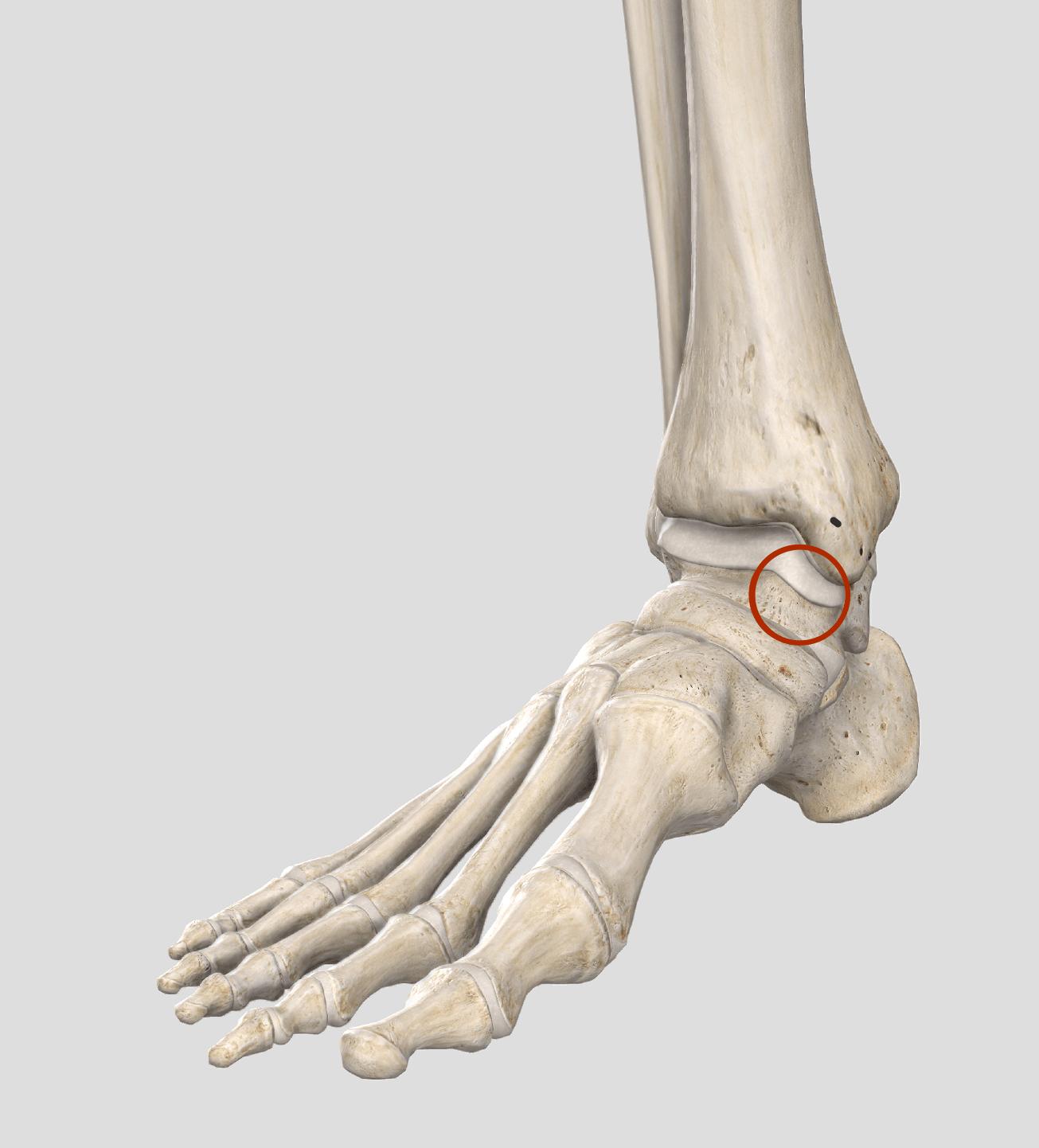 圧痛部位 距骨内側
