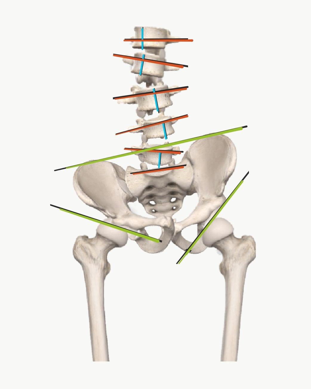 腰部脊柱管狭窄症・多様な病態把握で改善