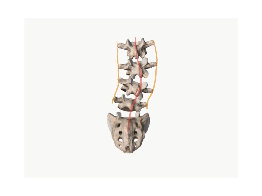 腰椎の右側弯モデル