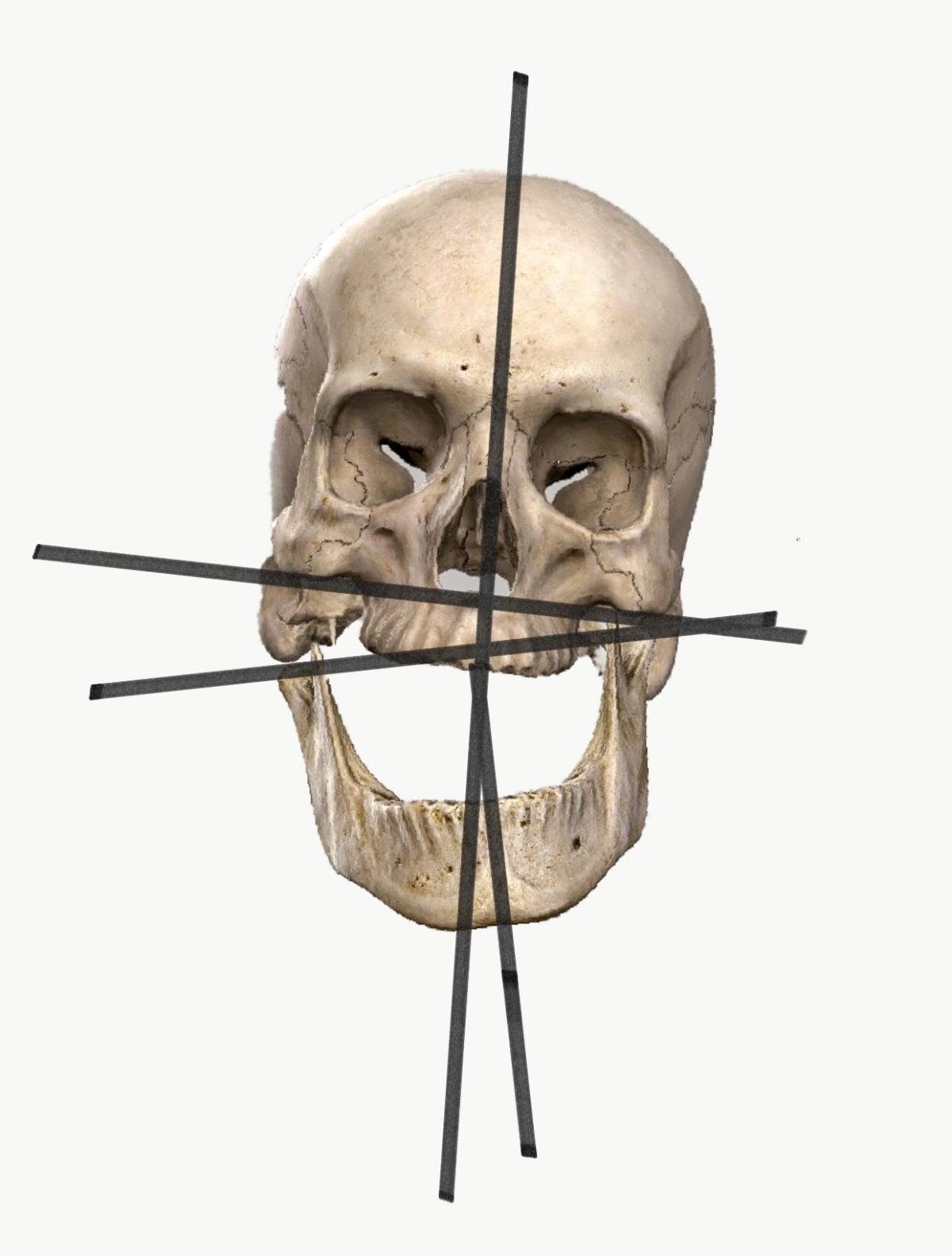 顎関節症には頭蓋の調整と頚椎の調整