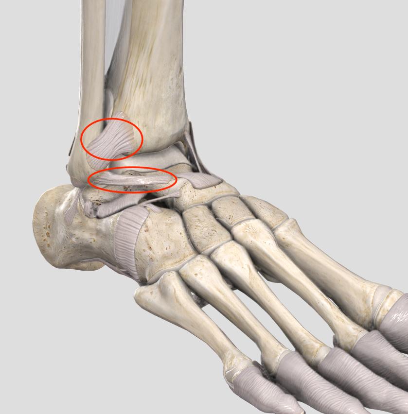 捻挫 靭帯