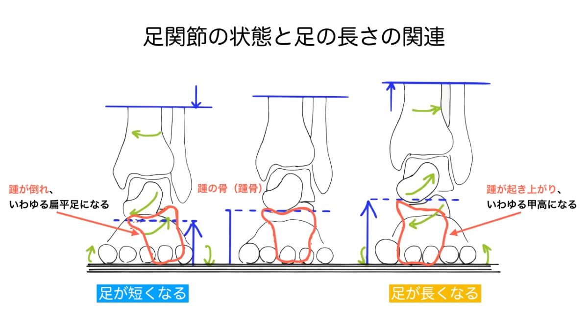 膝の痛み 注射をしているが良くならない 東京都港区 埼玉県さいたま市