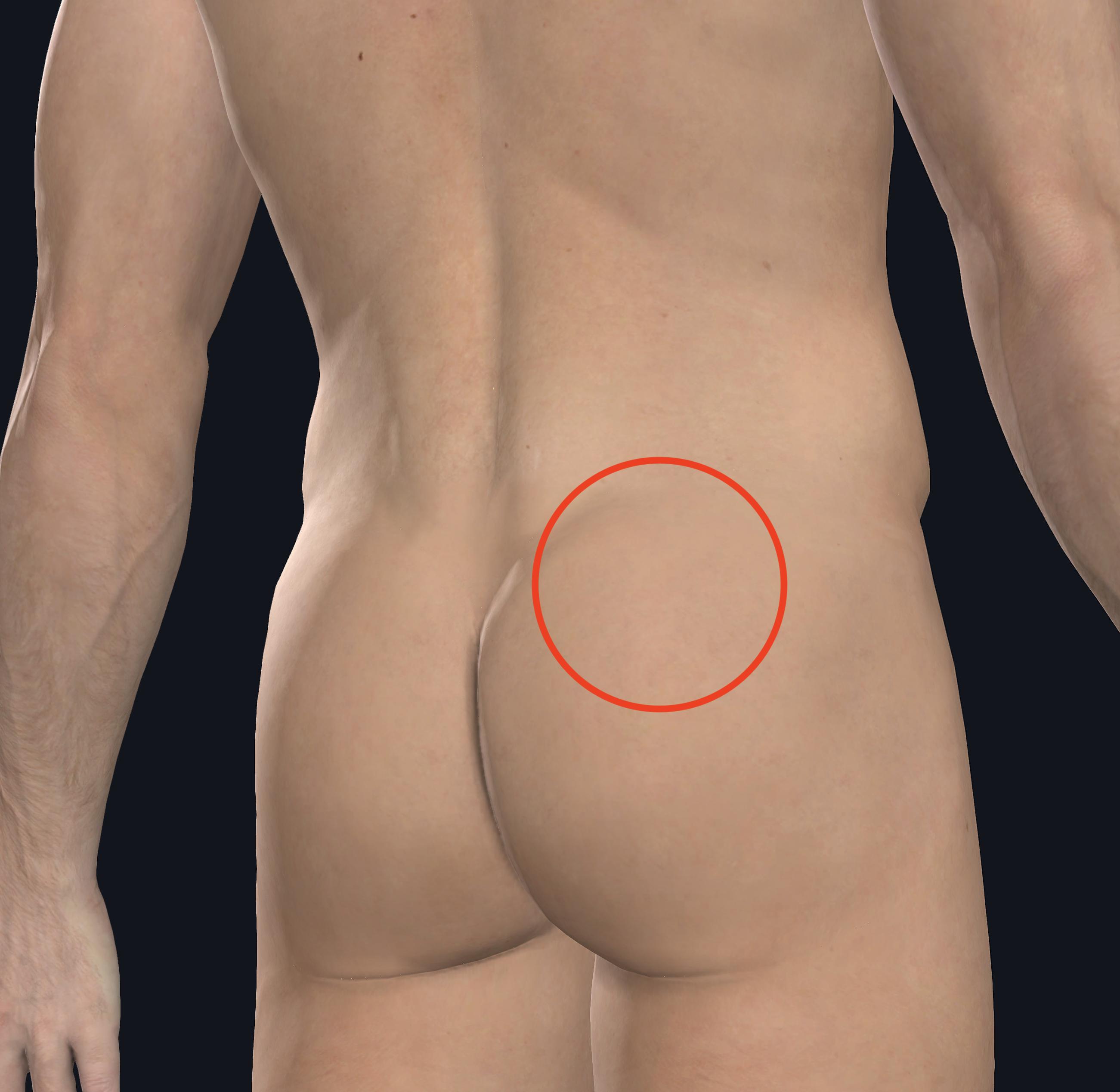 腰臀部痛 人体図