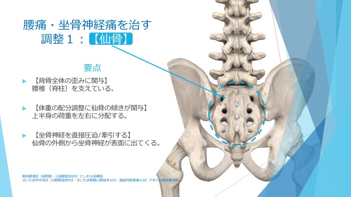 腰痛・坐骨神経痛と仙骨の機能異常