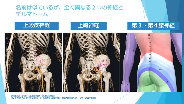 腰臀部の痛み 3つの神経が分布する領域 難治生腰痛を分析 東京都田町三田西村治療院 さいたま新都心与野アギトス鍼灸整骨院