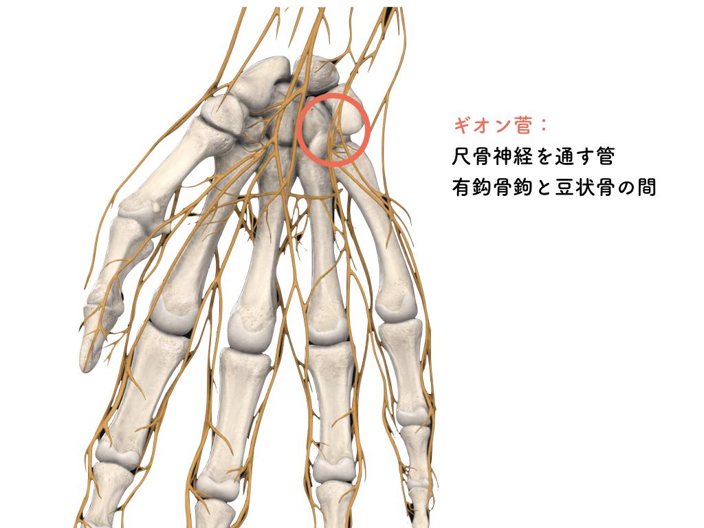 数ヶ月にも及ぶ腱鞘炎(弾発指、バネ指) 東京都港区 さいたま市