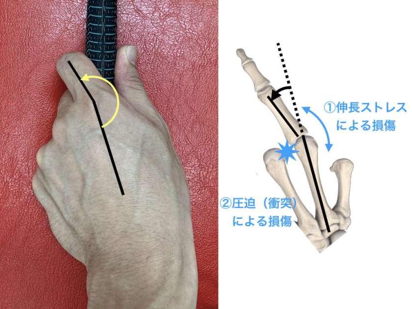 指の内転ストレスと腱鞘炎