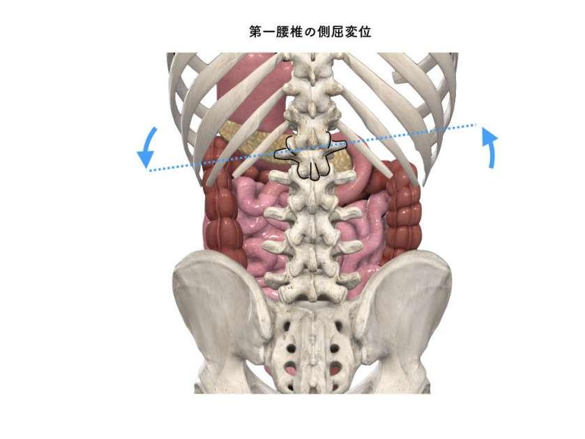 胃十二指腸 第一腰椎変位