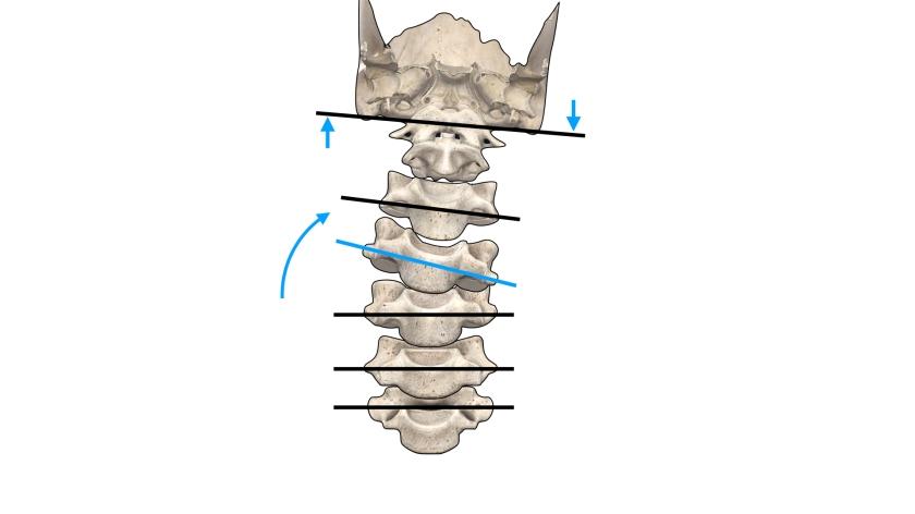 顎関節症 第4頚椎.001