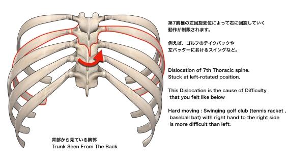 胸椎の回旋異常