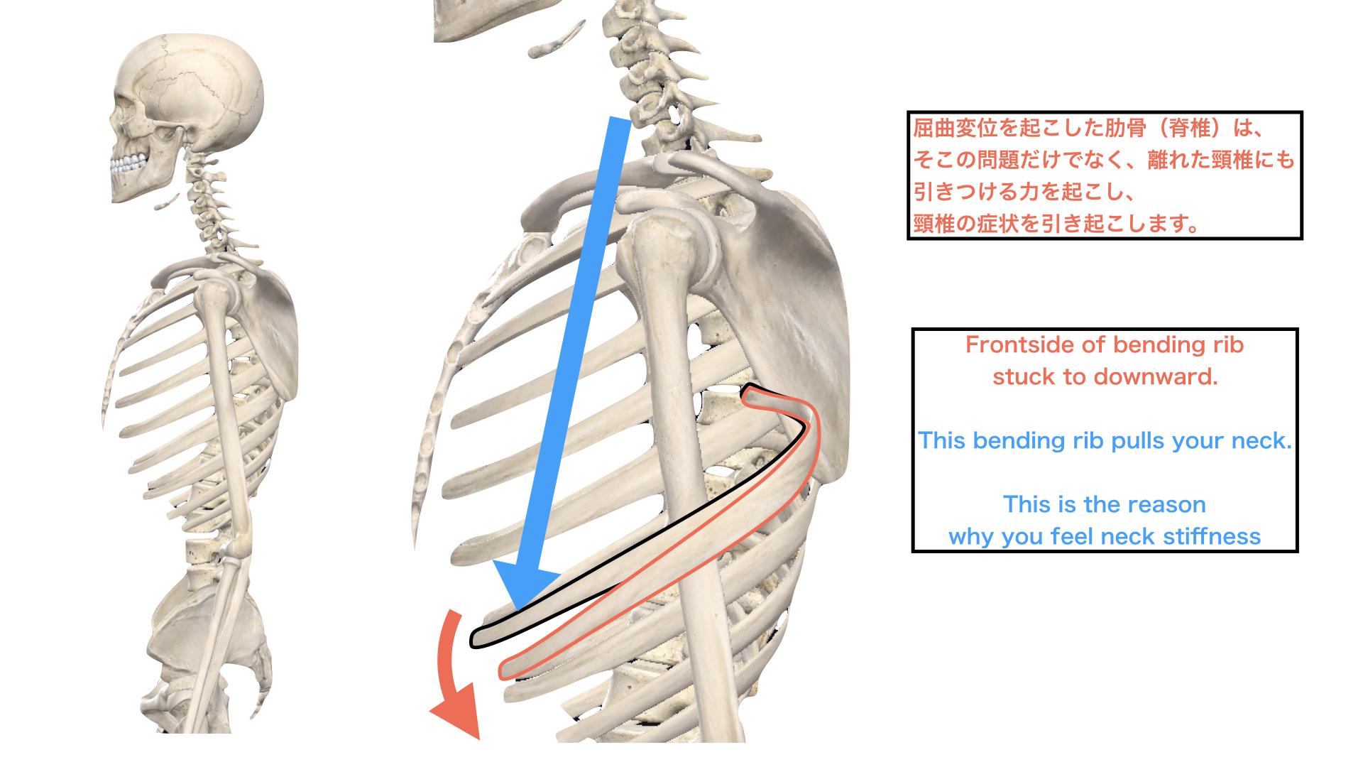 胸椎の屈曲による頚椎の緊張