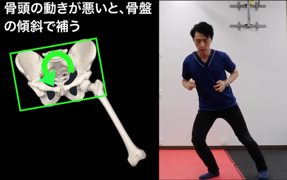 外転時の骨盤による股関節の代償運動