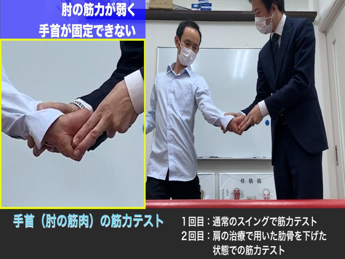 肘の痛み 多角的な視点で原因を探る手法 さいたま市アギトス鍼灸整骨院/ 東京都田町・三田にしむら治療院