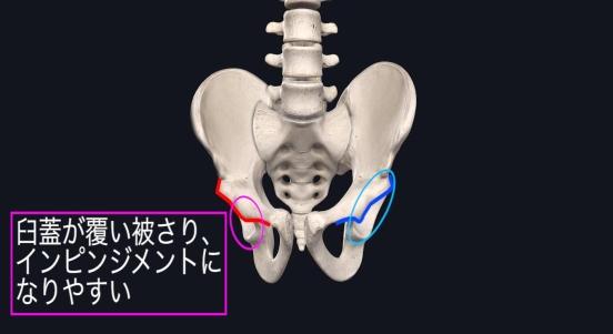 腸骨の内方変位によるインピンジメント